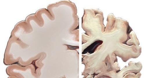 Healthy brain and brain with severe AD